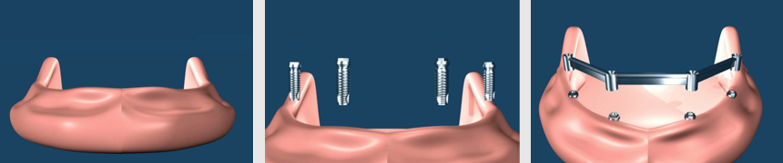 Implant Supported Removable Dentures